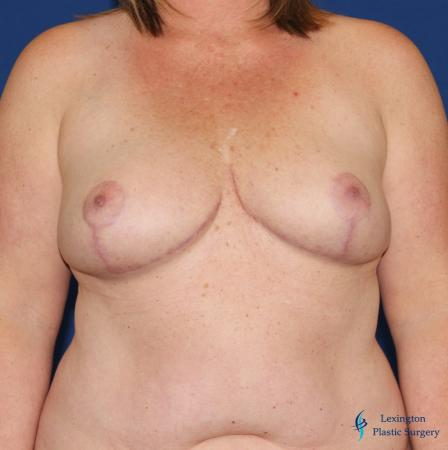 Breast Reduction: Patient 3 - After Image 1