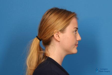Rhinoplasty: Patient 1 - Before Image 3