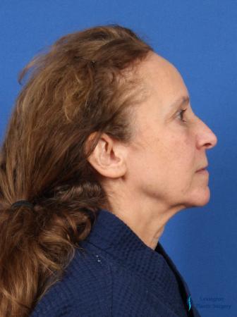 Facelift & Neck Lift: Patient 3 - Before Image 3