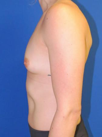 Breast Augmentation: Patient 2 - Before and After Image 6