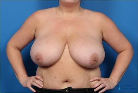 Breast Reduction: Patient 4 - Before Image 1