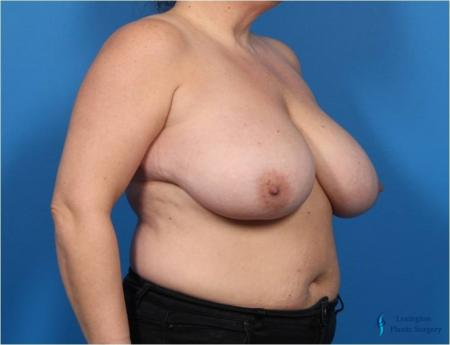 Breast Lift: Patient 2 - Before Image 4
