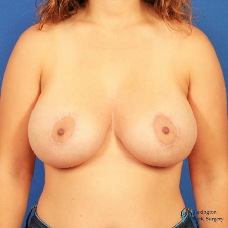 Breast Lift And Augmentation: Patient 2 - After Image 3