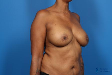 Breast Augmentation: Patient 8 - After Image 2