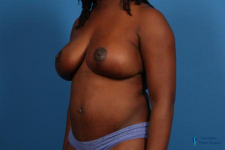 Breast Lift: Patient 4 - After Image 1