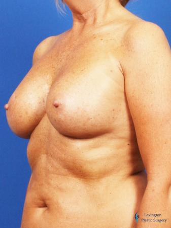 Breast Augmentation With Lift: Patient 1 - After Image 4