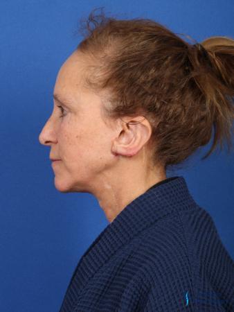 Facelift & Neck Lift: Patient 3 - After Image 5