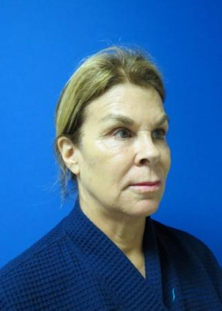 Facelift & Neck Lift: Patient 2 - Before Image 4