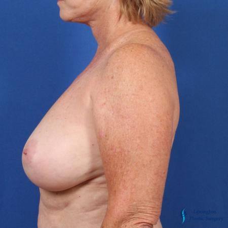 Breast Lift: Patient 1 - Before and After Image 3