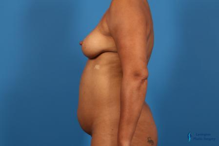 Liposuction: Patient 1 - Before and After Image 5