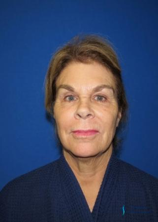 Facelift & Neck Lift: Patient 2 - Before Image 3