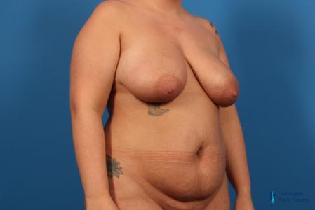 Breast Lift: Patient 5 - Before Image 4