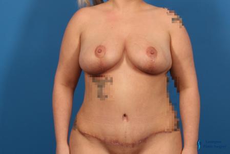 Abdominoplasty: Patient 2 - After Image
