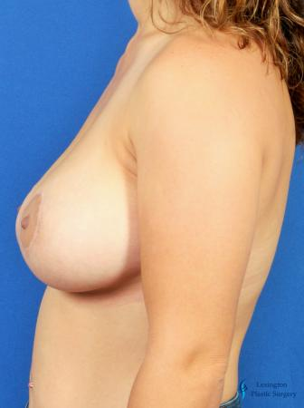Breast Lift And Augmentation: Patient 2 - After Image 5
