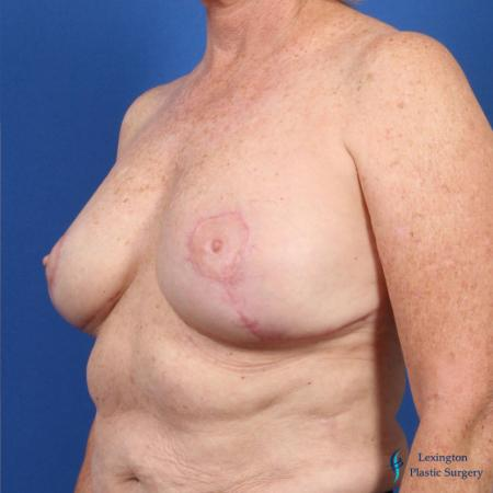 Breast Lift: Patient 1 - After Image 2