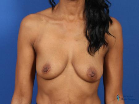 Breast Augmentation Revision: Patient 1 - Before Image 1