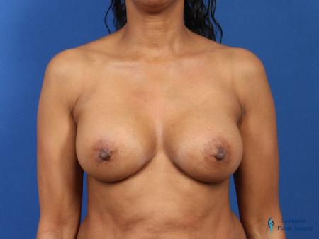 Breast Augmentation Revision: Patient 1 - After Image 1