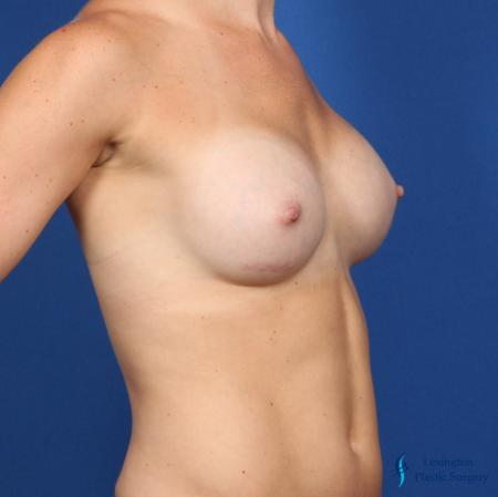 Breast Augmentation: Patient 5 - After Image 4