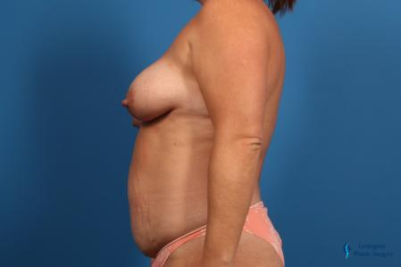Abdominoplasty: Patient 1 - Before Image 3
