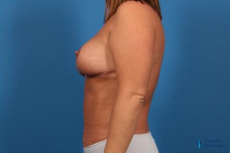 Abdominoplasty: Patient 1 - After Image 3