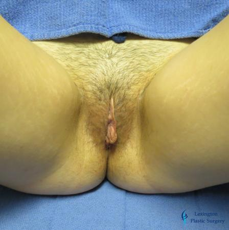 Labiaplasty: Patient 6 - Before and After Image 2