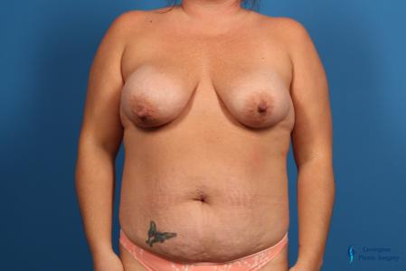 Abdominoplasty: Patient 1 - Before Image 1
