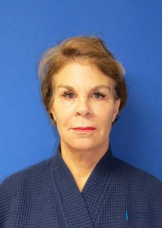 Facelift & Neck Lift: Patient 2 - After Image 3