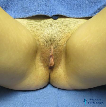 Labiaplasty: Patient 5 - Before and After Image 2