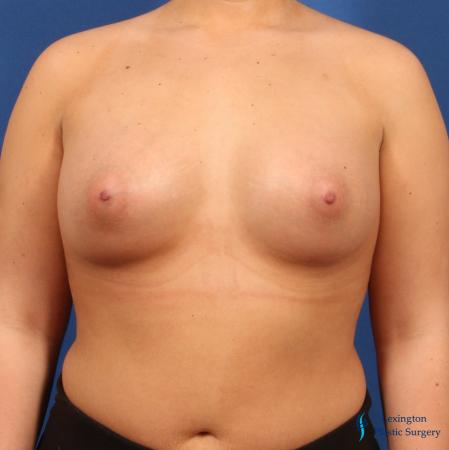 Breast Augmentation: Patient 6 - After Image 3