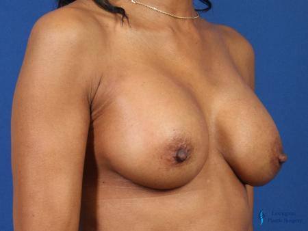 Breast Augmentation Revision: Patient 1 - After Image 2