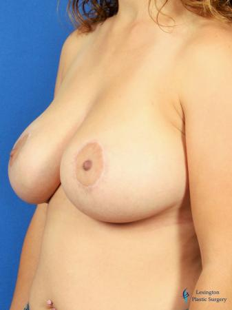 Breast Lift And Augmentation: Patient 2 - After Image 4