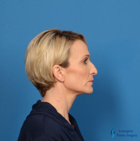 Rhinoplasty Revision: Patient 1 - Before Image 1