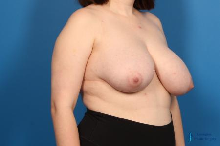 Breast Reduction: Patient 6 - Before Image 1