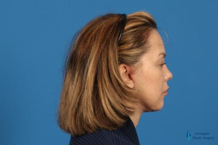 Facelift: Patient 2 - After Image 5