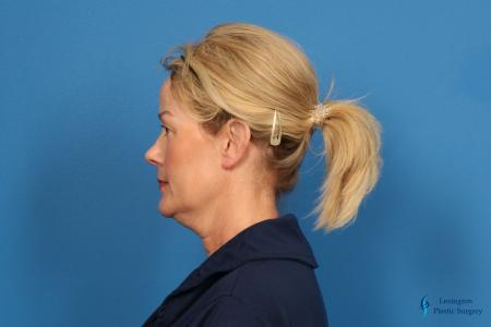 Facelift & Neck Lift: Patient 4 - Before and After Image 5