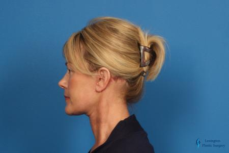 Facelift & Neck Lift: Patient 4 - After Image 5