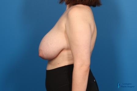 Breast Reduction: Patient 6 - Before and After Image 3