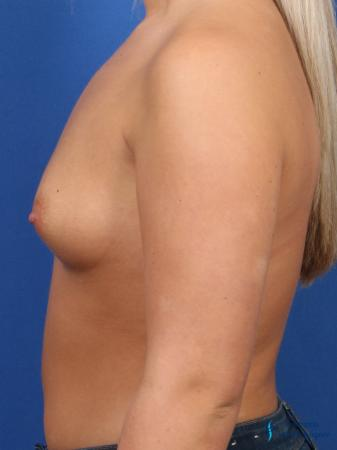 Breast Augmentation: Patient 6 - Before and After Image 5