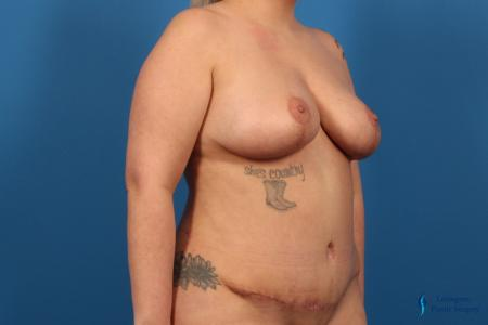 Breast Lift: Patient 5 - After Image 4