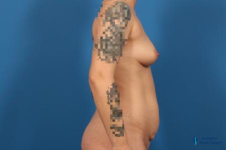 Breast Augmentation: Patient 11 - Before and After Image 3