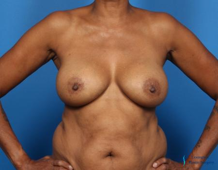 Breast Augmentation: Patient 8 - After Image 6