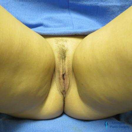 Labiaplasty: Patient 1 - After Image 2