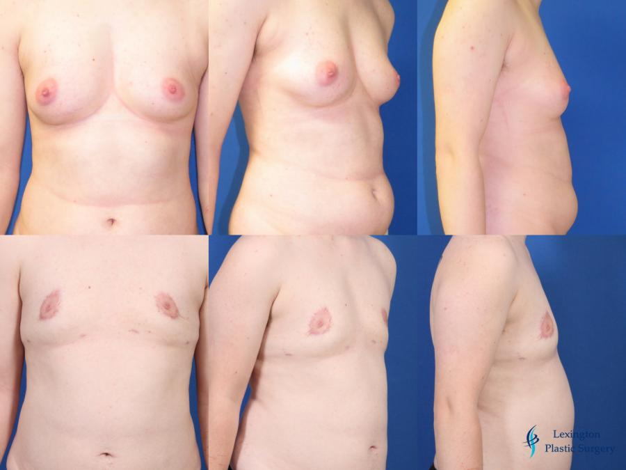 Top Surgery - Female To Male: Patient 1 - Before and After Image