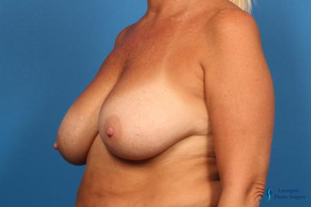 Breast Reduction: Patient 7 - Before Image 2