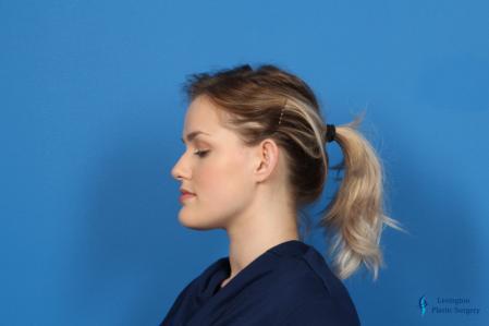 Otoplasty: Patient 3 - Before Image 5