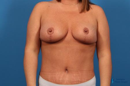 Abdominoplasty: Patient 1 - After Image 1