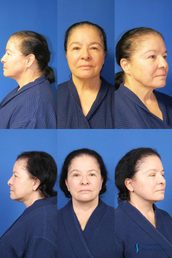 Facelift & Neck Lift: Patient 1 - Before and After Image