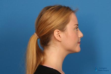 Chin Augmentation: Patient 1 - After Image 3
