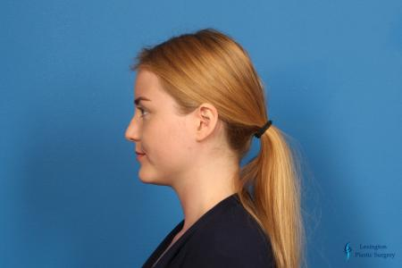 Rhinoplasty: Patient 1 - Before and After Image 4