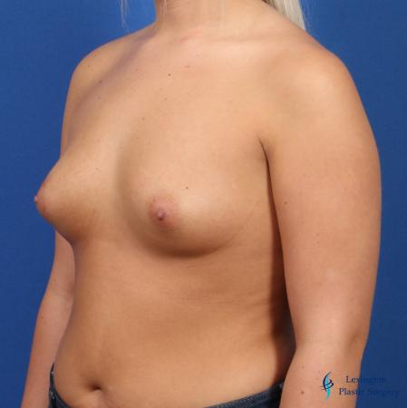 Breast Augmentation: Patient 6 - Before Image 4
